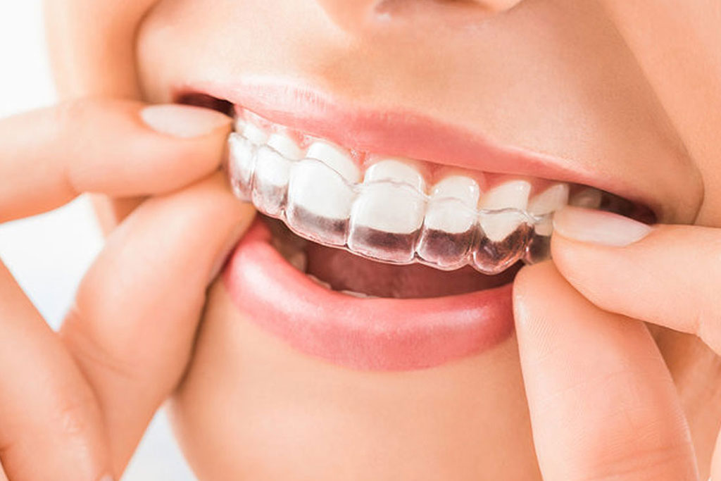 Clear Aligners and Invisible Braces