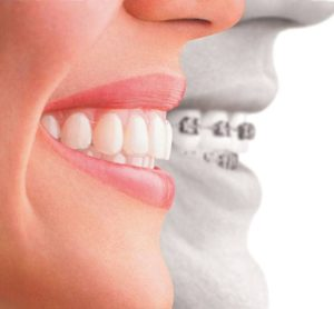 Clear Aligners treatment